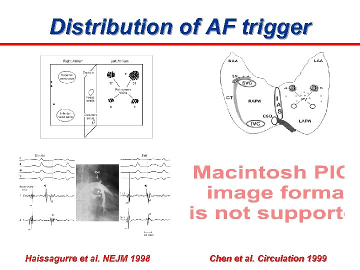 Distribution of AF trigger Haissagurre et al. NEJM 1998 Chen et al. Circulation 1999