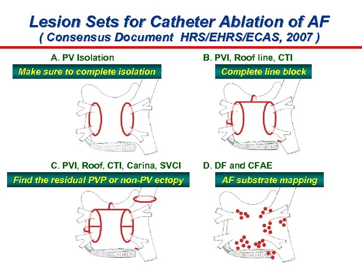 Lesion Sets for Catheter Ablation of AF ( Consensus Document HRS/ECAS, 2007 ) A.