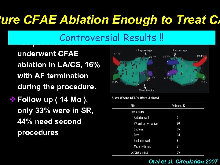 Pure CFAE Ablation Enough to Treat CA Controversial Results !! v 100 patients with