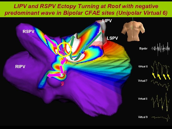 LIPV and RSPV Ectopy Turning at Roof with negative predominant wave in Bipolar CFAE