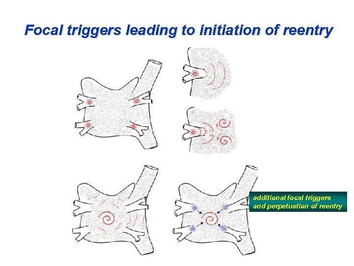 Focal triggers leading to initiation of reentry additional focal triggers and perpetuation of reentry