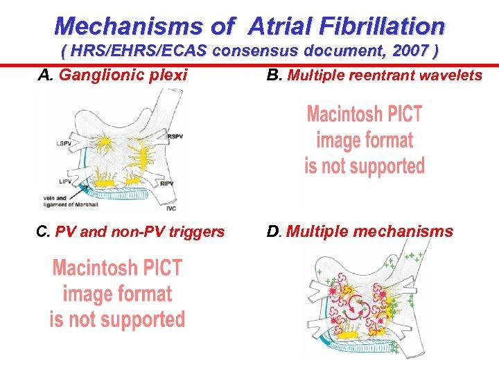 Mechanisms of Atrial Fibrillation ( HRS/ECAS consensus document, 2007 ) A. Ganglionic plexi B.
