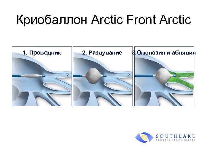 Криобаллон Arctic Front Arctic 1. Проводник 2. Раздувание 3. Окклюзия и абляция