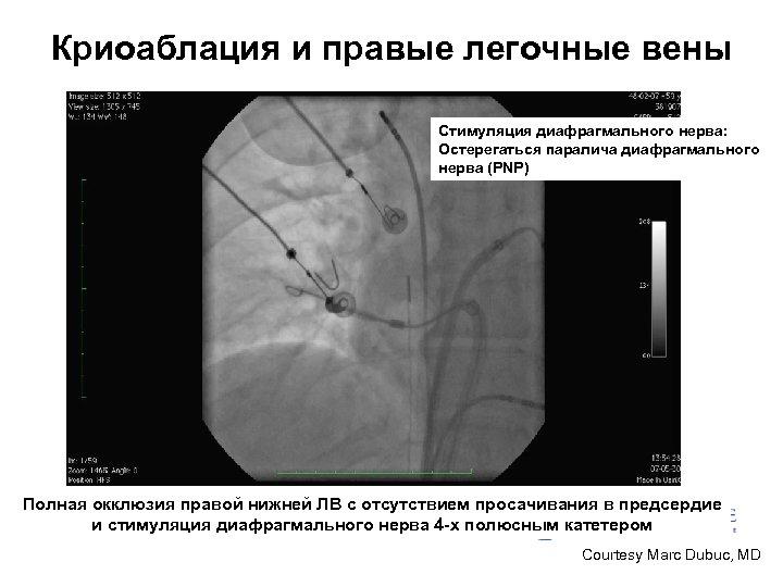 Криоаблация и правые легочные вены Стимуляция диафрагмального нерва: Остерегаться паралича диафрагмального нерва (PNP) Полная