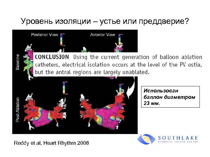 Уровень изоляции – устье или преддверие? Использован баллон диаметром 23 мм. Reddy et al,