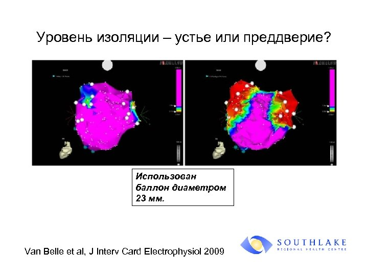 Уровень изоляции – устье или преддверие? Использован баллон диаметром 23 мм. Van Belle et