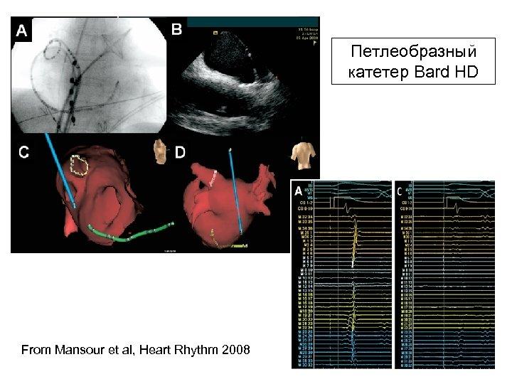 Петлеобразный катетер Bard HD From Mansour et al, Heart Rhythm 2008