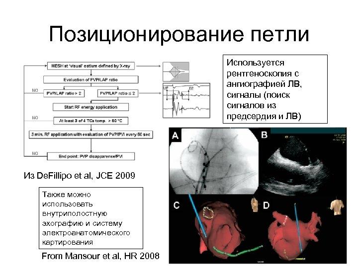 Позиционирование петли Используется рентгеноскопия с ангиографией ЛВ, сигналы (поиск сигналов из предсердия и ЛВ)
