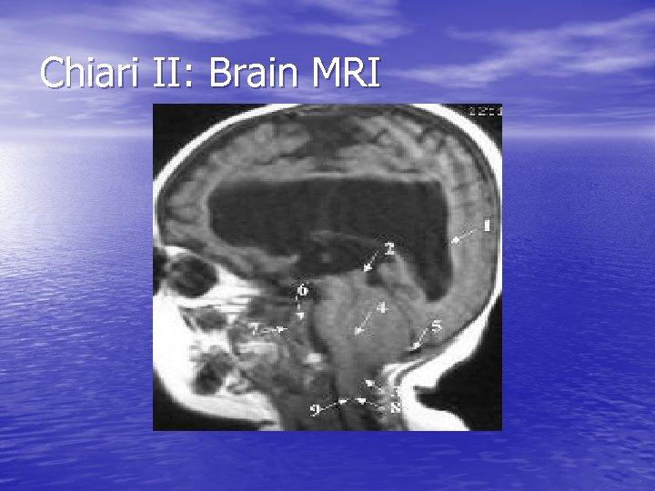 Chiari II: Brain MRI