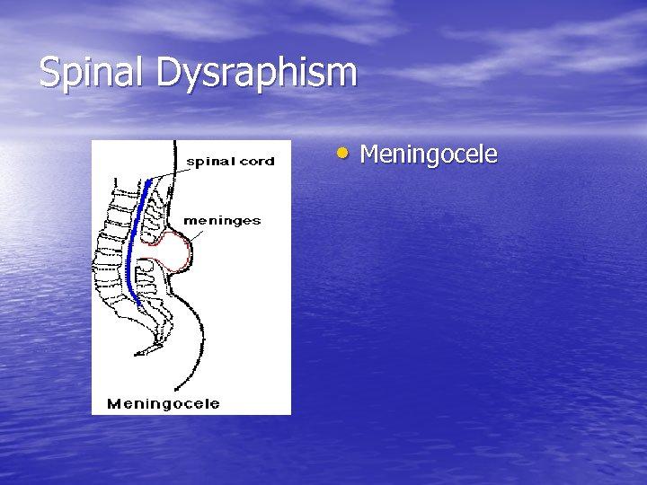 Spinal Dysraphism • Meningocele