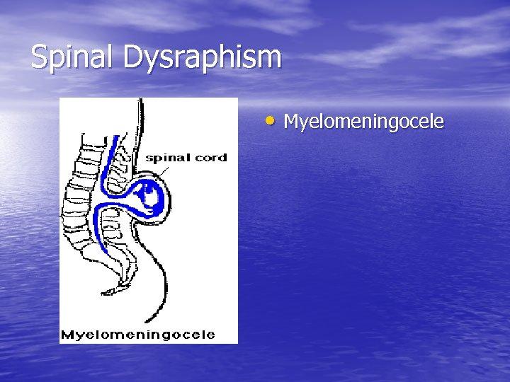 Spinal Dysraphism • Myelomeningocele