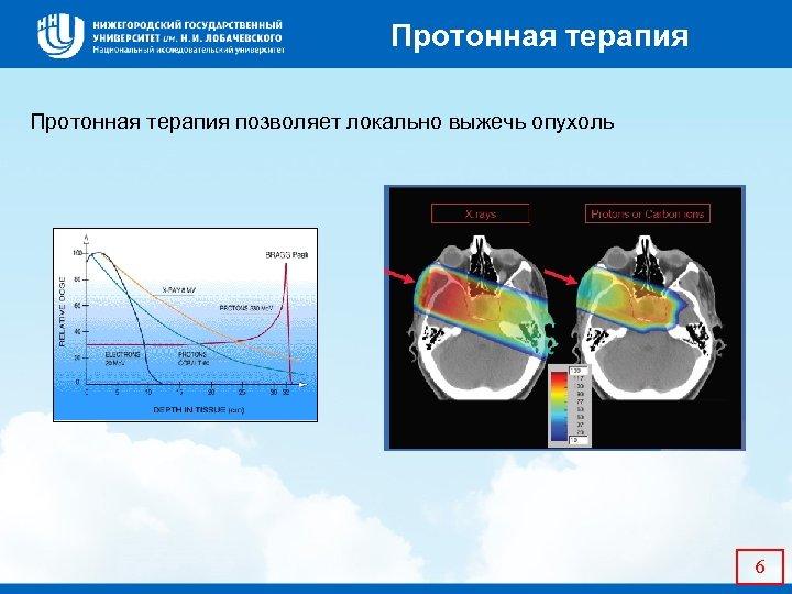 Протонная терапия позволяет локально выжечь опухоль 6