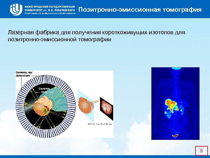 Позитронно-эмиссионная томография Лазерная фабрика для получения короткоживущих изотопов для позитронно-эмиссионной томографии 8