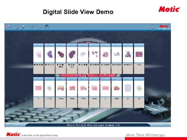 Digital Slide View Demo