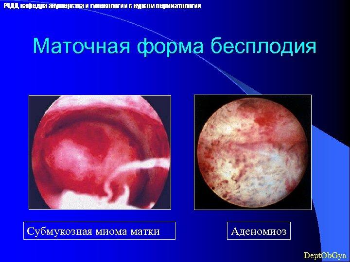РУДН, кафедра акушерства и гинекологии с курсом перинатологии Маточная форма бесплодия Субмукозная миома матки