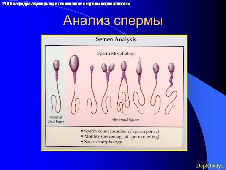 РУДН, кафедра акушерства и гинекологии с курсом перинатологии Анализ спермы Dept. Ob. Gyn