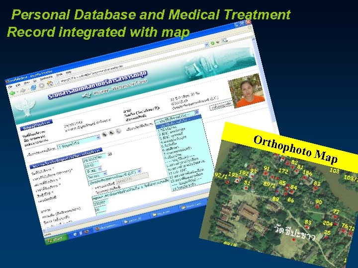 Personal Database and Medical Treatment Record integrated with map Orth opho to Ma p