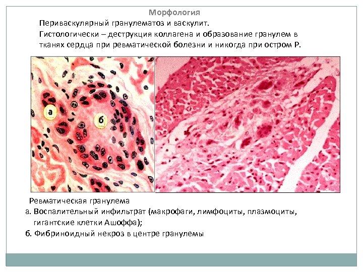 Морфология Периваскулярный гранулематоз и васкулит. Гистологически – деструкция коллагена и образование гранулем в тканях