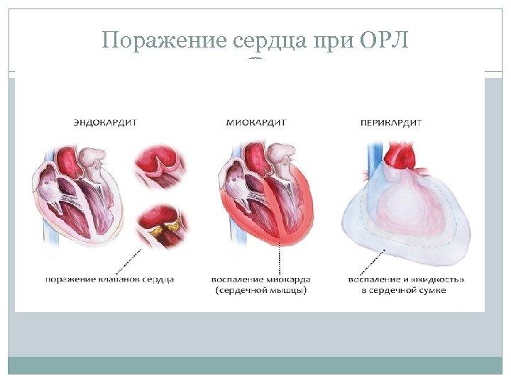 Поражение сердца при ОРЛ