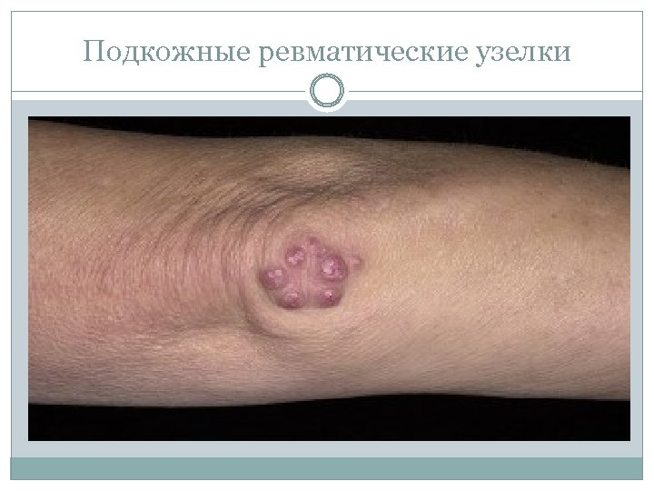 Подкожные ревматические узелки