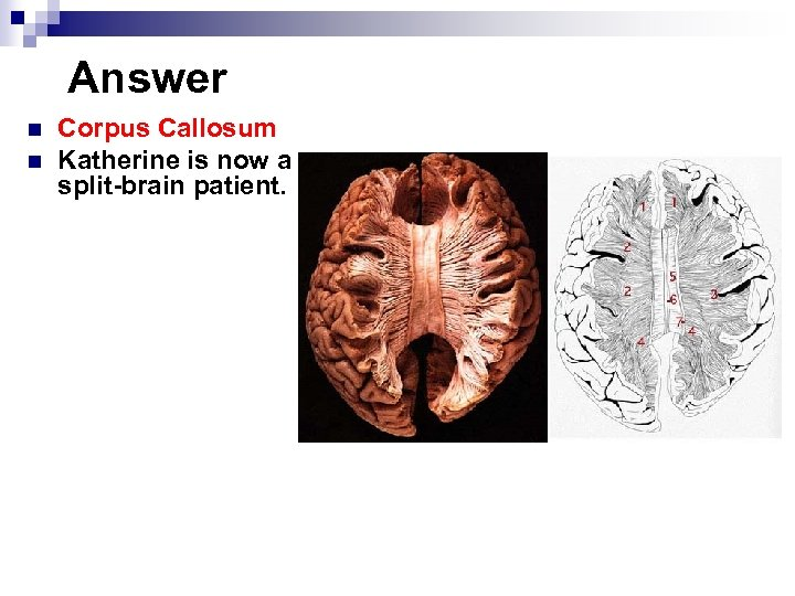 Answer n n Corpus Callosum Katherine is now a split-brain patient.