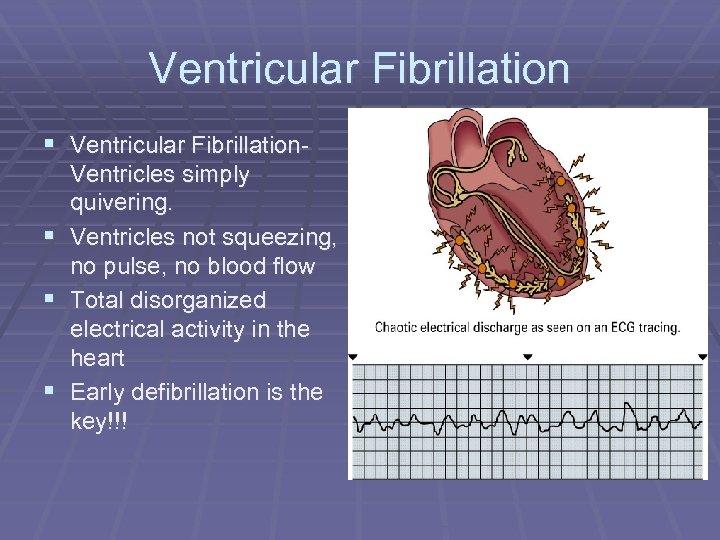 Ventricular Fibrillation § Ventricular Fibrillation. Ventricles simply quivering. § Ventricles not squeezing, no pulse,