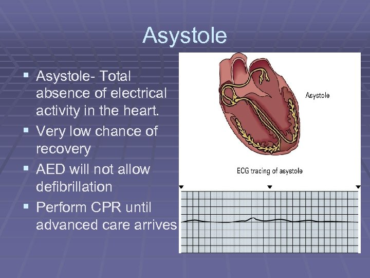 Asystole § Asystole- Total absence of electrical activity in the heart. § Very low