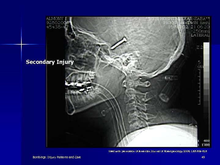 Secondary Injury Used with permission of American Journal of Roentgenology 2006; 187: 609 -616