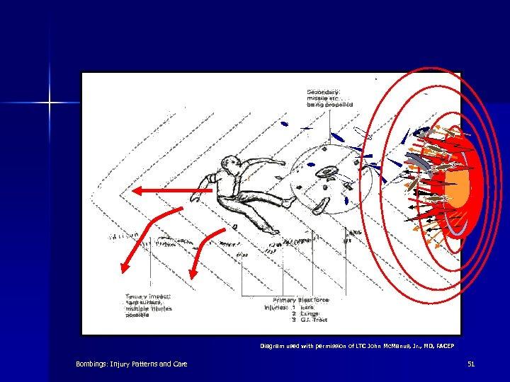 Diagram used with permission of LTC John Mc. Manus, Jr. , MD, FACEP Bombings: