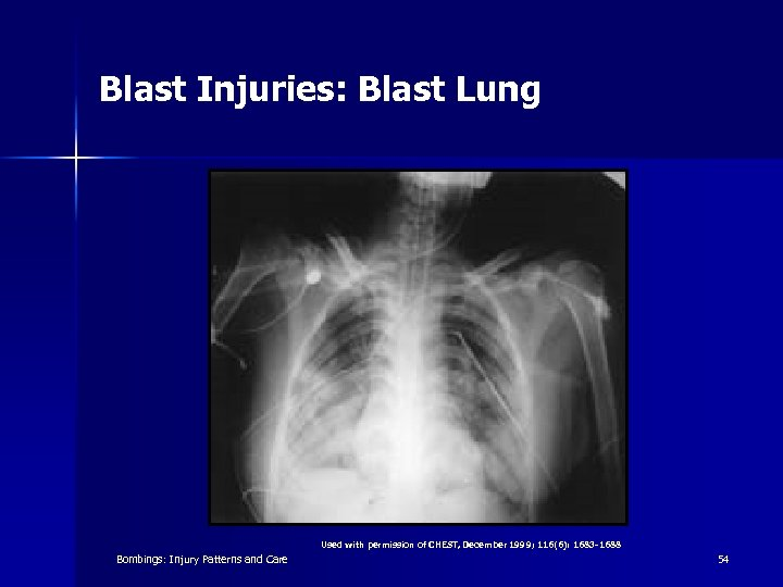 Blast Injuries: Blast Lung Used with permission of CHEST, December 1999; 116(6): 1683 -1688