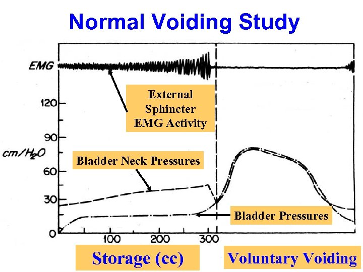 Normal Voiding Study External Sphincter EMG Activity Bladder Neck Pressures Bladder Pressures Storage (cc)