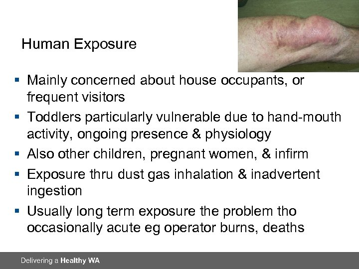 Human Exposure § Mainly concerned about house occupants, or frequent visitors § Toddlers particularly