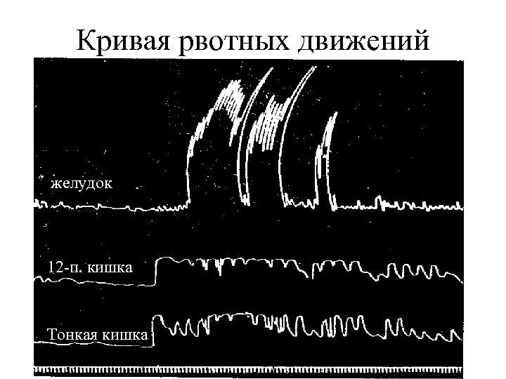 Кривая рвотных движений желудок 12 -п. кишка Тонкая кишка