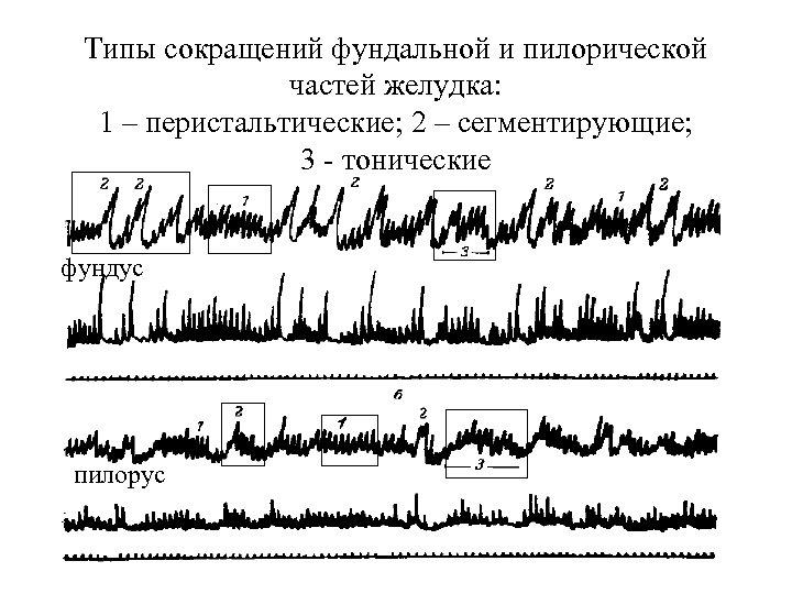 Типы сокращений фундальной и пилорической частей желудка: 1 – перистальтические; 2 – сегментирующие; 3