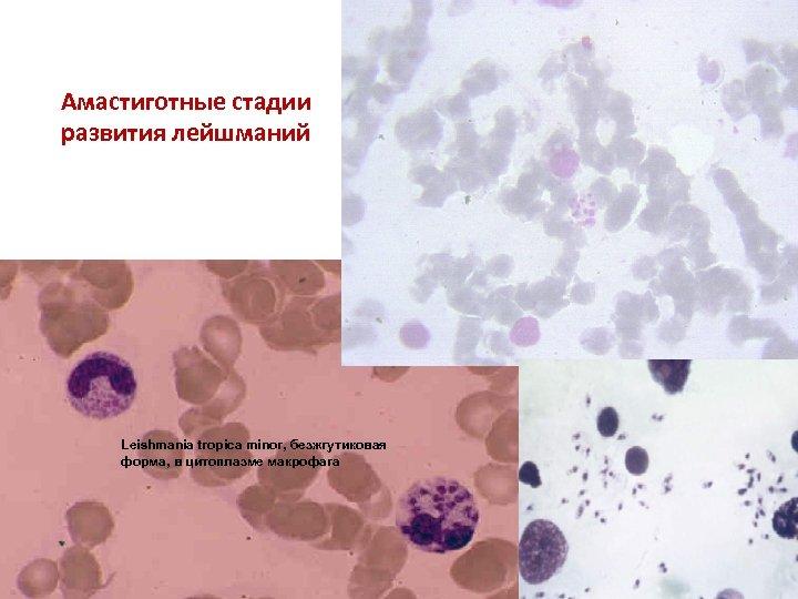 Амастиготные стадии развития лейшманий Leishmania tropica minor, безжгутиковая форма, в цитоплазме макрофага
