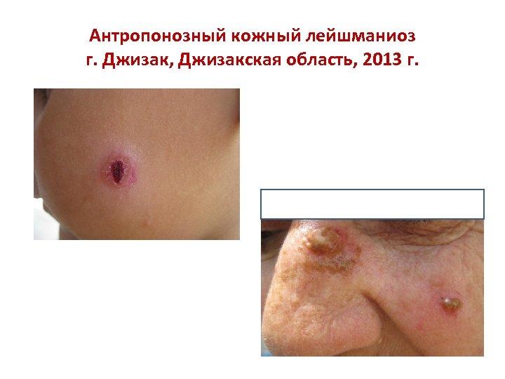 Антропонозный кожный лейшманиоз г. Джизак, Джизакская область, 2013 г.