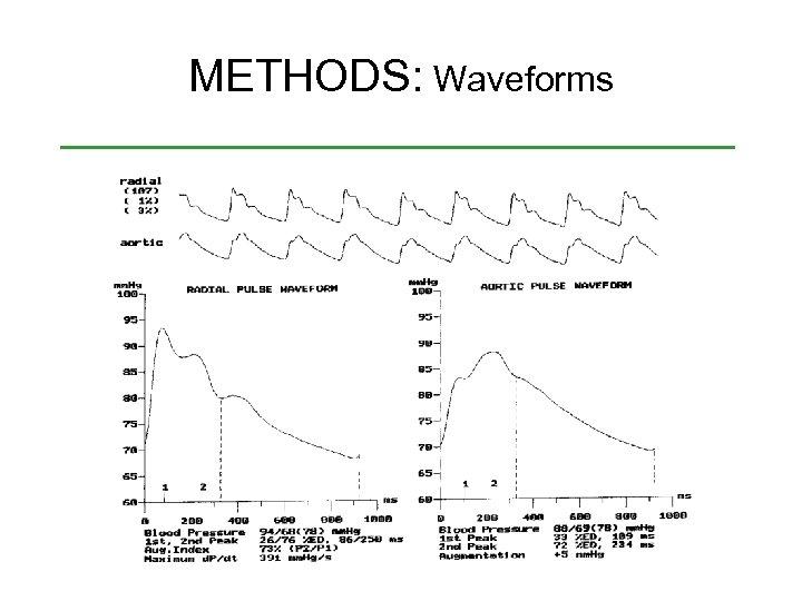 METHODS: Waveforms