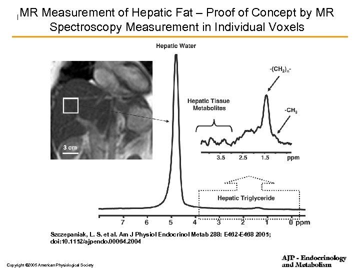MR Experimental set-up for measurements – Proof of Concept content Fig. 1. Measurement of