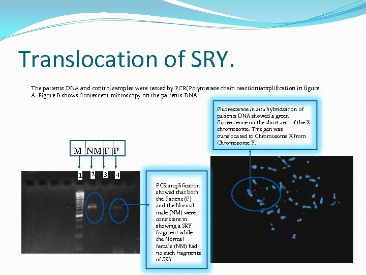 Translocation of SRY. The patients DNA and control samples were tested by PCR(Polymerase chain