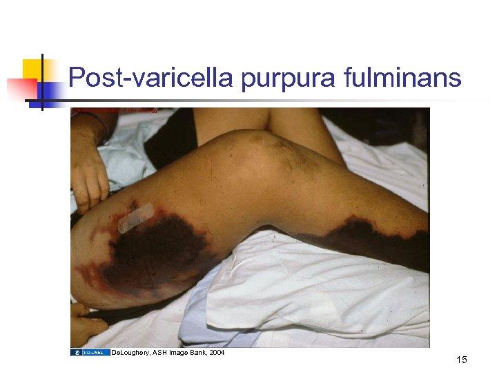 Post-varicella purpura fulminans De. Loughery, ASH Image Bank, 2004 15