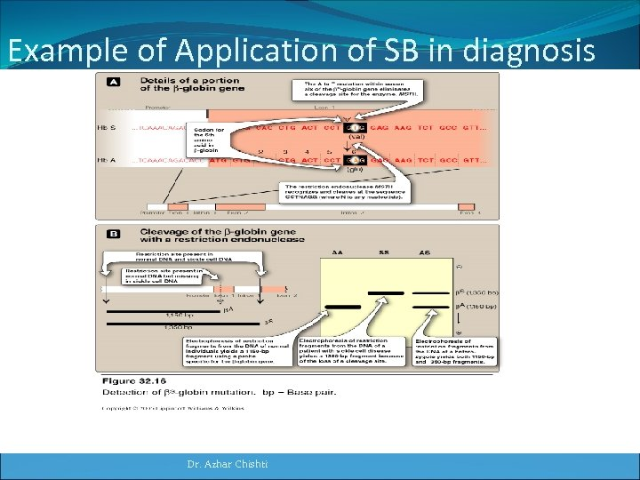 Example of Application of SB in diagnosis of mutation in globin gene Dr. Azhar