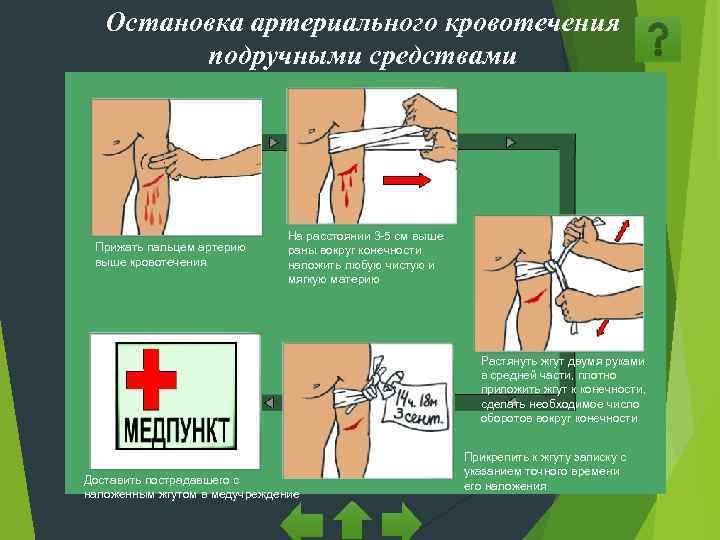 Остановка артериального кровотечения   подручными средствами
