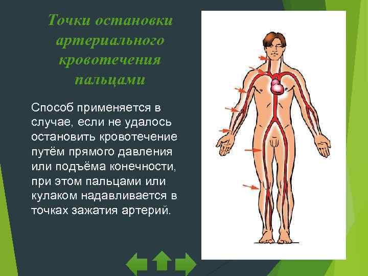 Точки остановки  артериального  кровотечения пальцами Способ применяется в случае, если не