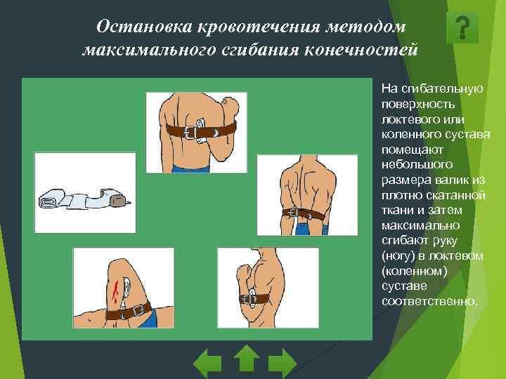 Остановка кровотечения методом максимального сгибания конечностей      На сгибательную