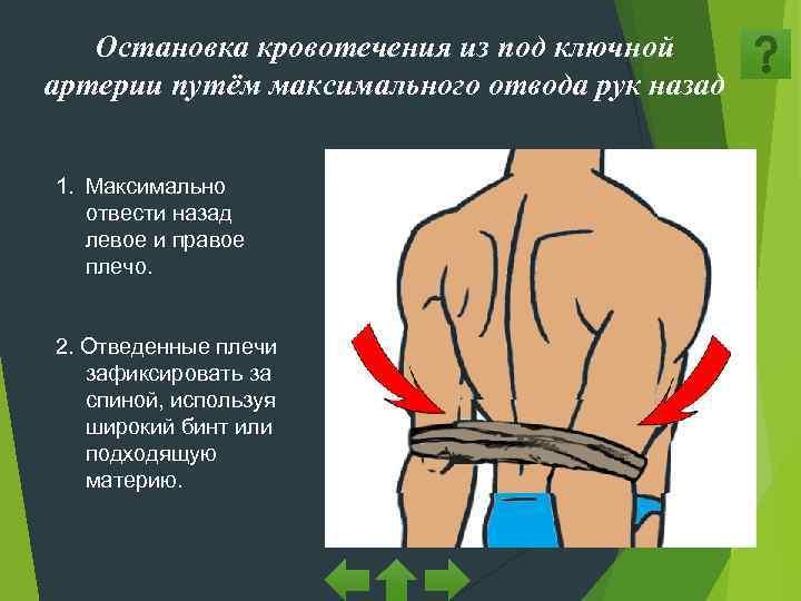 Остановка кровотечения из под ключной артерии путём максимального отвода рук назад
