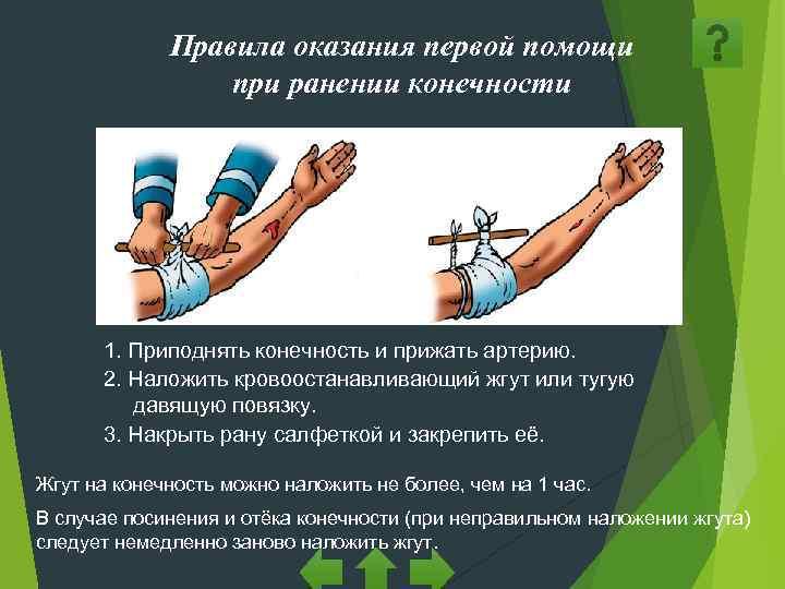 Правила оказания первой помощи   при ранении конечности  1.