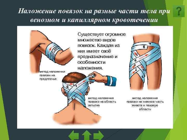 Наложение повязок на разные части тела при  венозном и капиллярном кровотечении