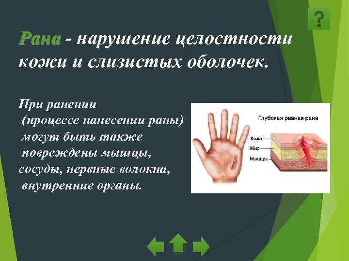 Рана - нарушение целостности кожи и слизистых оболочек.  При ранении (процессе нанесении раны)