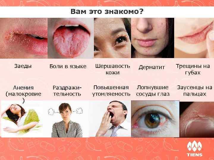 Вам это знакомо? Заеды Боли в языке Анемия (малокровие ) Раздражительность Шершавость кожи Дерматит
