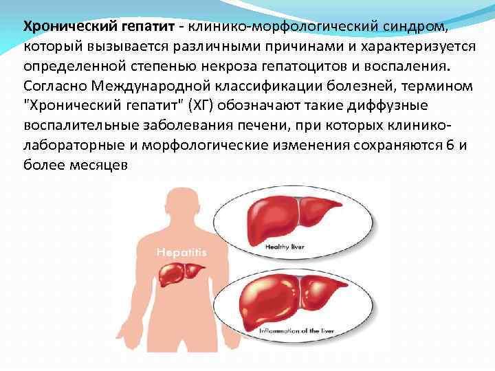 Хронический гепатит - клинико-морфологический синдром, который вызывается различными причинами и характеризуется определенной степенью некроза
